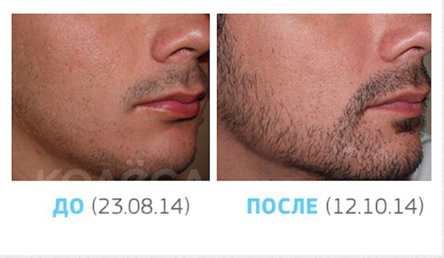 миноксидил для волос отзывы после отмены препарата хорошей эластичности