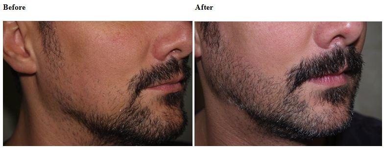 Что делать если не растет борода