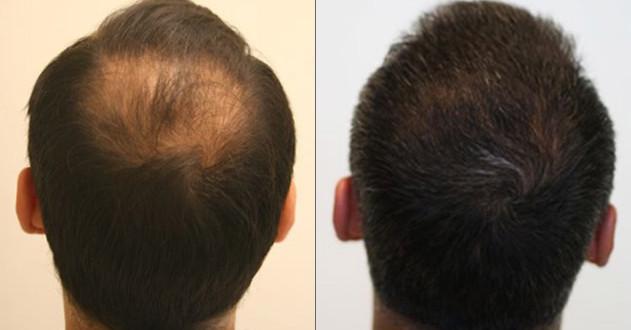 Решаются кардинальные чем можно остановить рост волос на лице у женщин массировать