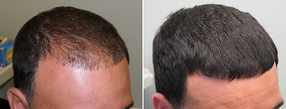 активатор роста волос орифлейм отзывы