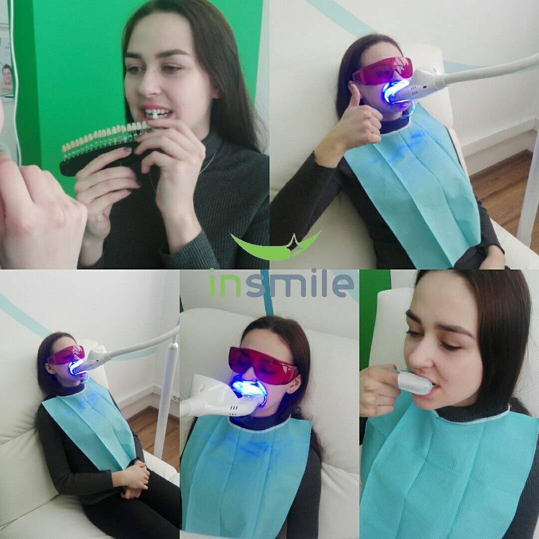 отбеливание зубов insmile отзывы